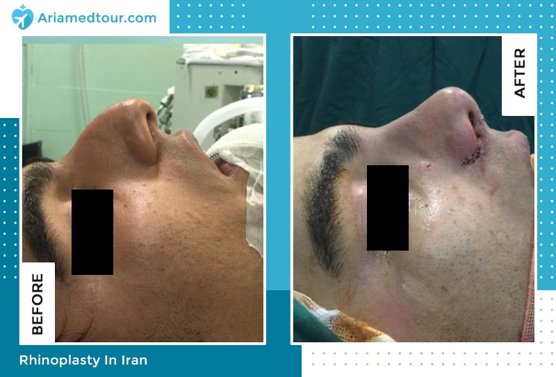 hooked nose job results by dr bayat shahbazi in tehran