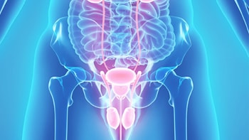 Bladder cancer treatment in Iran