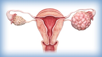 Ovarian cancer treatment in Iran