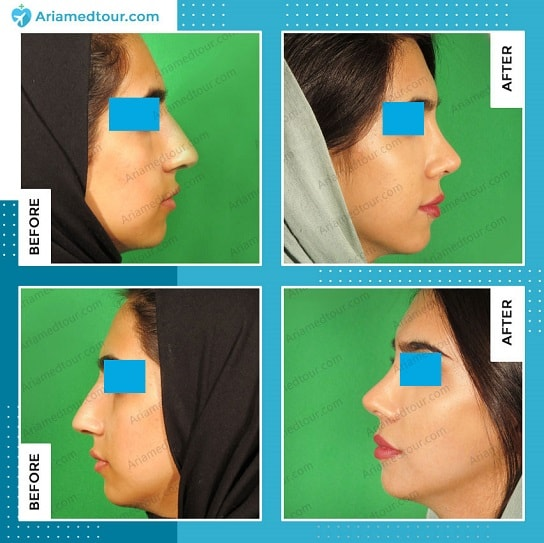 nose job in Iran rhinoplasty before after dr. Boromand Ariamedtour