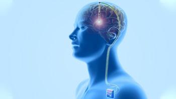 Brain Surgery - DBS