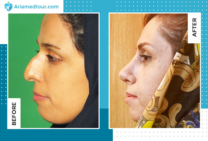 Dr Boroumand nose job before and after