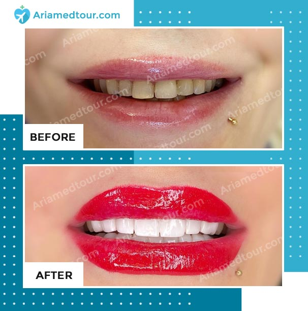 dentistry before after photo in iran