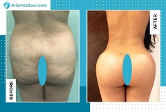 Liposuction before after photo