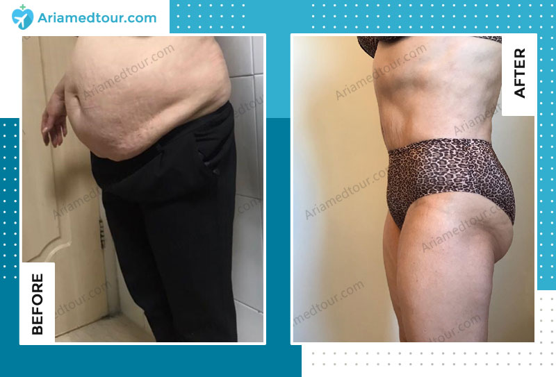 abdomioplasty before and after in Iran with Dr. Azizi