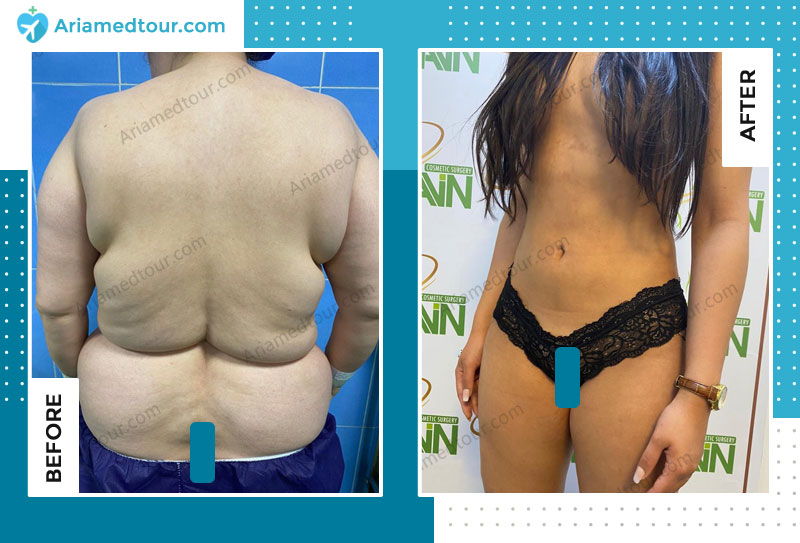 tummy tuck before and after in Iran with Dr. Azizi AriaMedTour