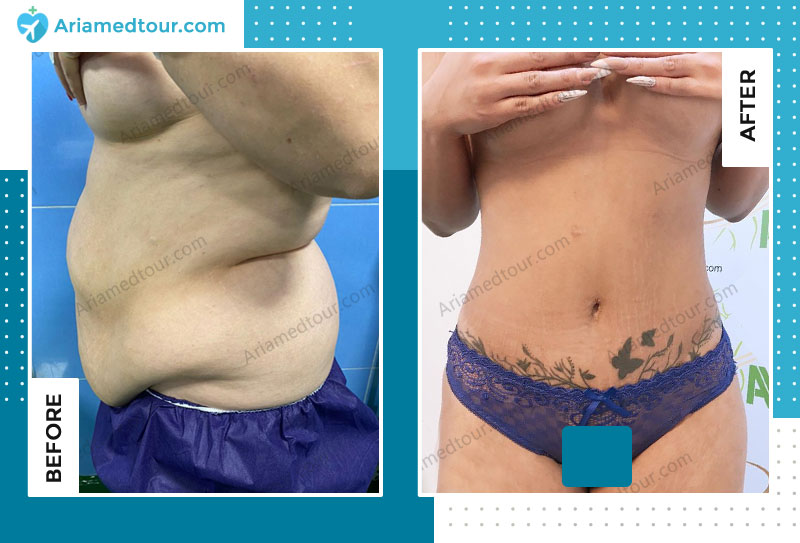 abdomioplasty before and after in Iran with Dr. Azizi AriaMedTour