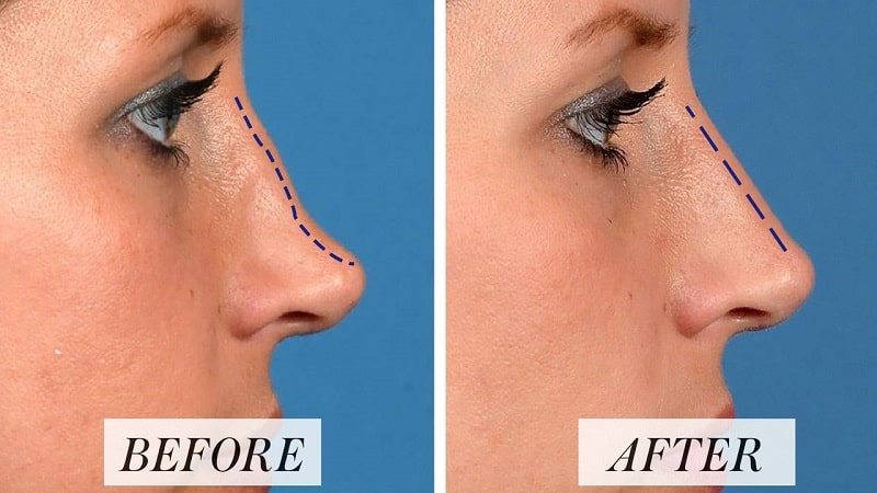 Liquid nose job with filler before after photo