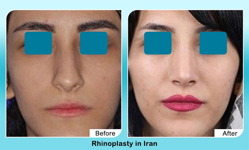 before and after rhinoplasty in Tehran with Dr. Hamidreza Hosnani