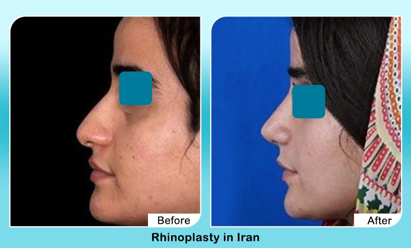 before and after nose job surgery in Iran with Dr. Hamidreza Hosnani
