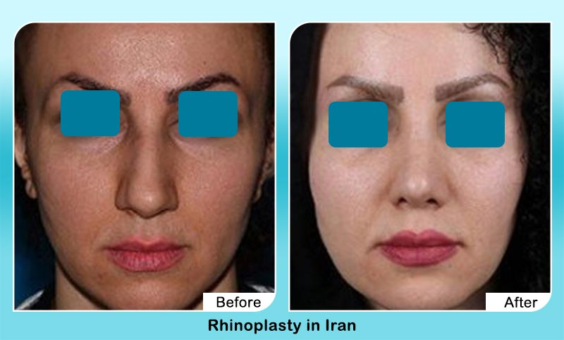before and after nose job surgery in Tehran with Dr. Hamidreza Hosnani