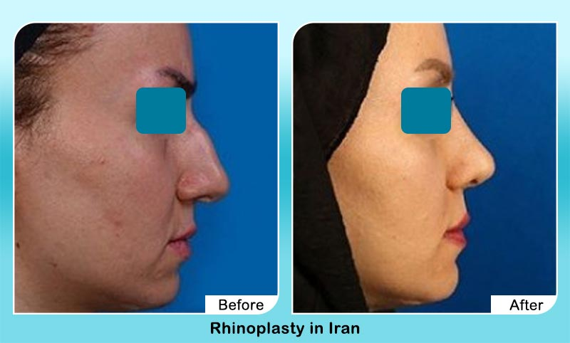 before and after nose job surgery in Tehran with Dr. Hosnani