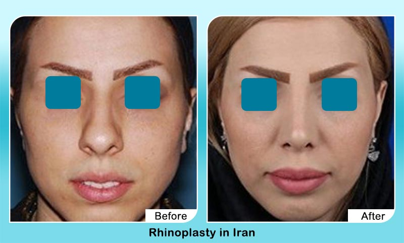 before and after rhinoplasty surgery in Tehran with Dr. Hosnani
