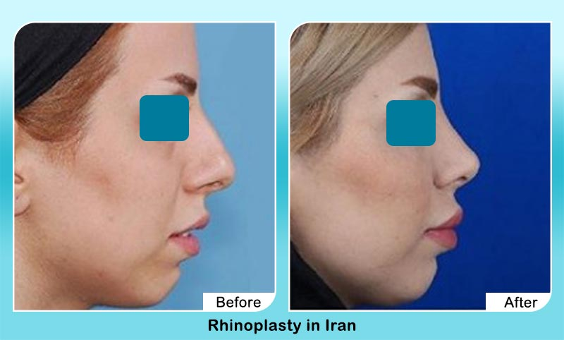 before and after rhinoplasty surgery in Tehran with Dr. Hamidreza Hosnani