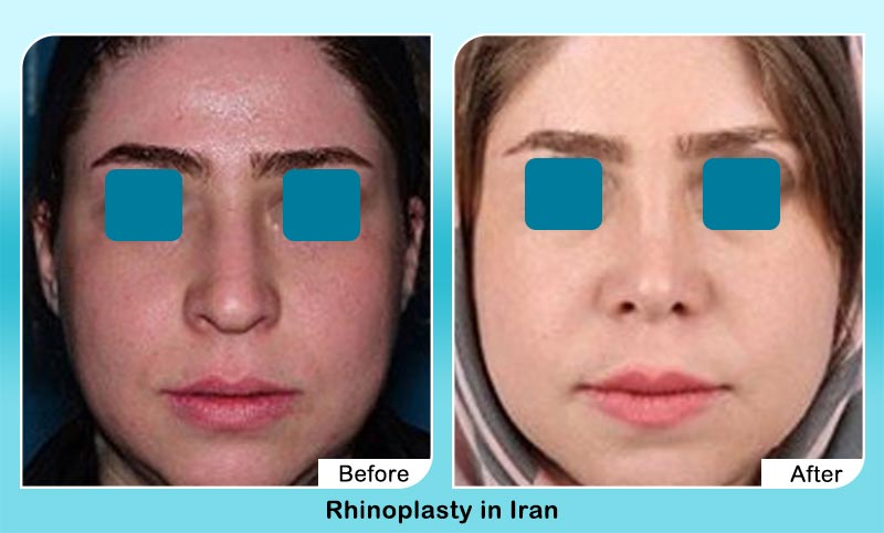before and after rhinoplasty surgery in Iran with Dr. Hamidreza Hosnani