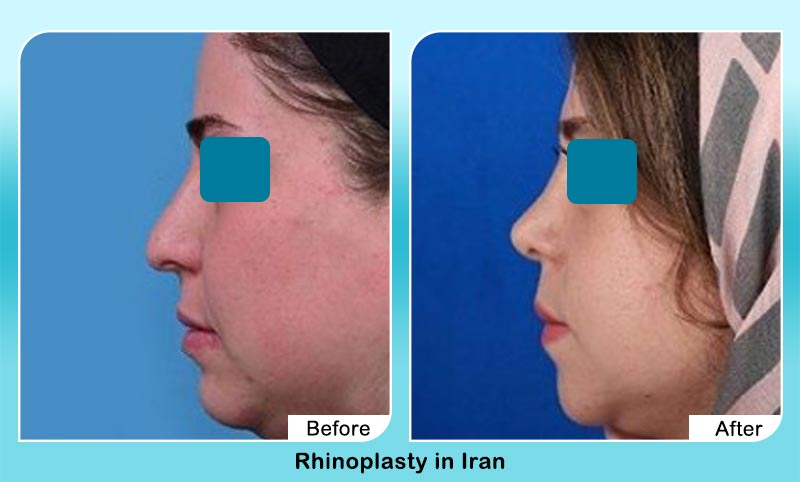 before and after rhinoplasty surgery in Iran with Dr. Hosnani