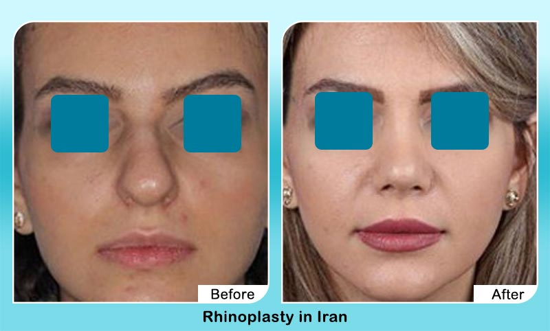 before and after rhinoplasty in Iran with Dr. Hosnani
