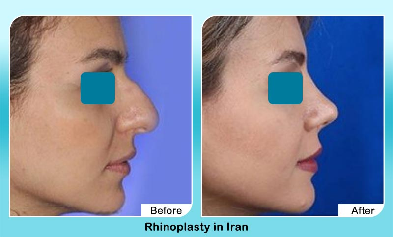before and after rhinoplasty in Iran with Dr. Hamidreza Hosnani