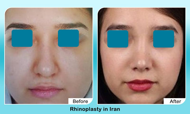 before and after rhinoplasty in Tehran with Dr. Hosnani