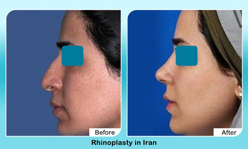 before and after nose job in Tehran with Dr. Hosnani