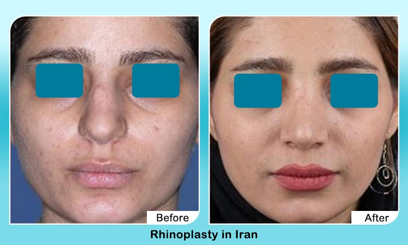 before and after nose job in Tehran with Dr. Hamidreza Hosnani