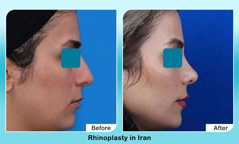 before and after nose job with Dr. Hamidreza Hosnani