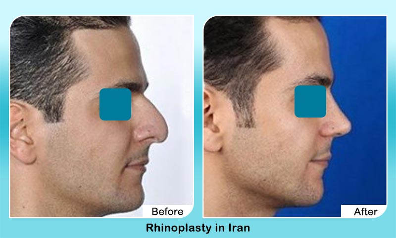 before and after nose job for men with Dr. Hamidreza Hosnani