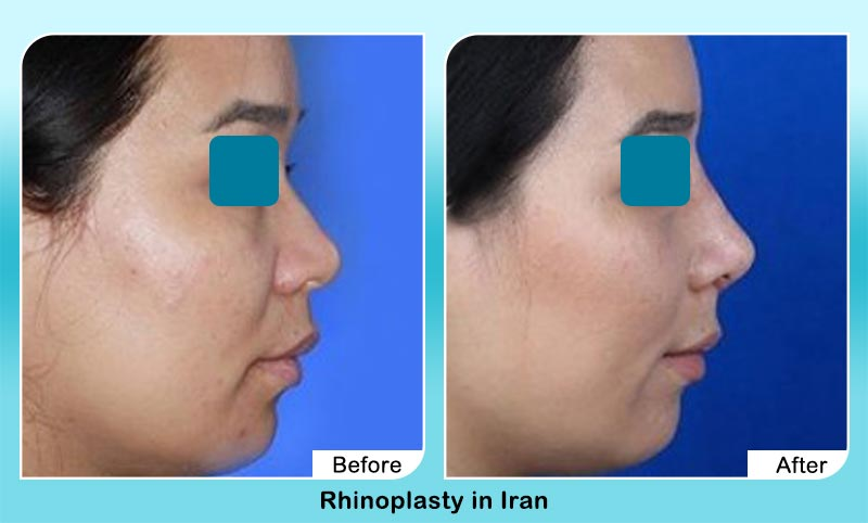 before and after nose job in Iran with Dr. Hosnani