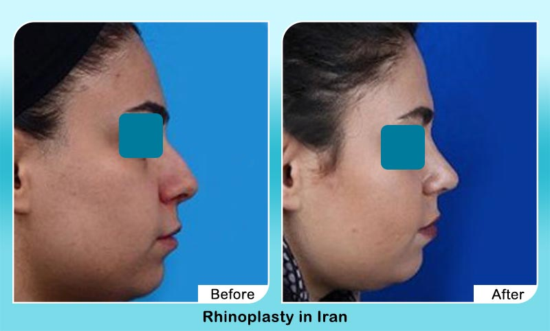 before and after nose job surgery in Iran with Dr. Hosnani