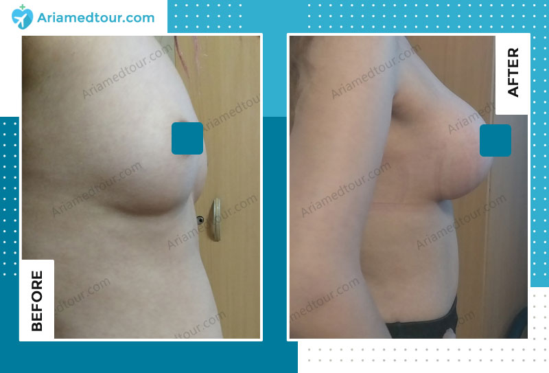 Before and after breast augmentation in Iran with Dr. Azizi AriaMedTour
