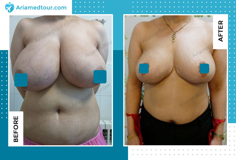 Before and after breast reduction in Iran with Dr. Azizi