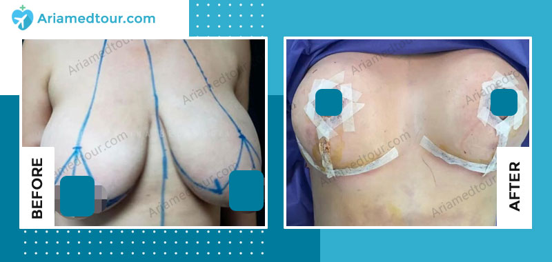 Before and after breast lift in Iran with Dr. Azizi