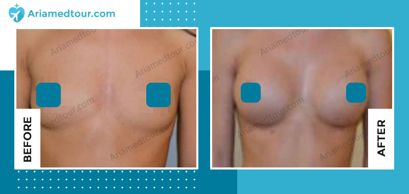Before and after breast augmentation in Iran with Dr. Azizi