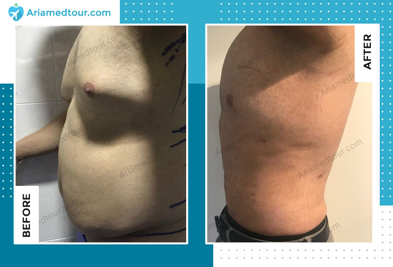 Before and after gynecomastia in Iran with Dr. Shapour Azizi