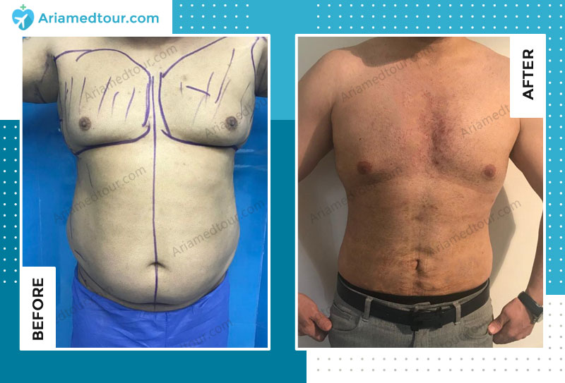 Before and after male breast reduction in Iran with Dr. Shapour Azizi