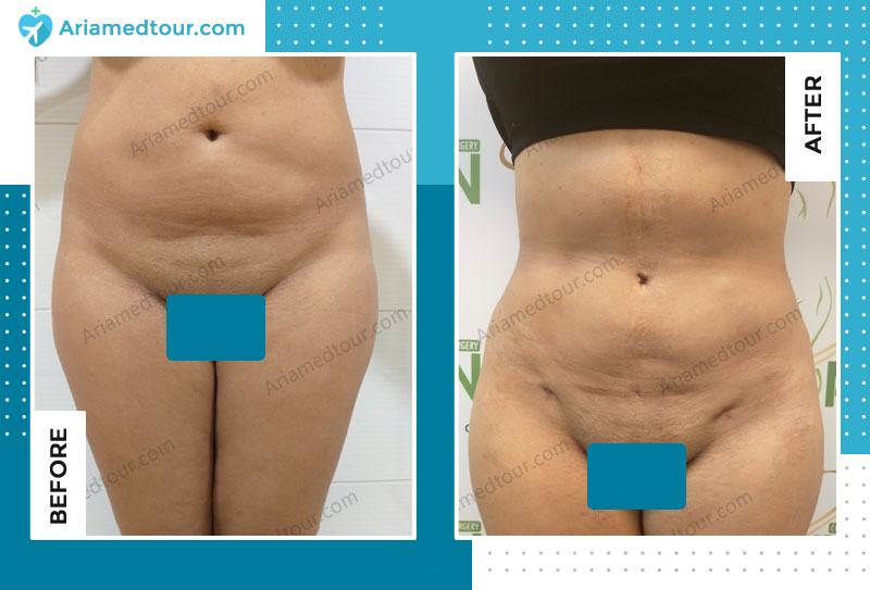 Before and after liposuction in Iran with Dr. Shapour Azizi