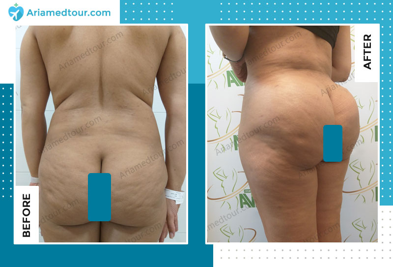 Before and after liposculture in Iran with Dr. Shapour Azizi