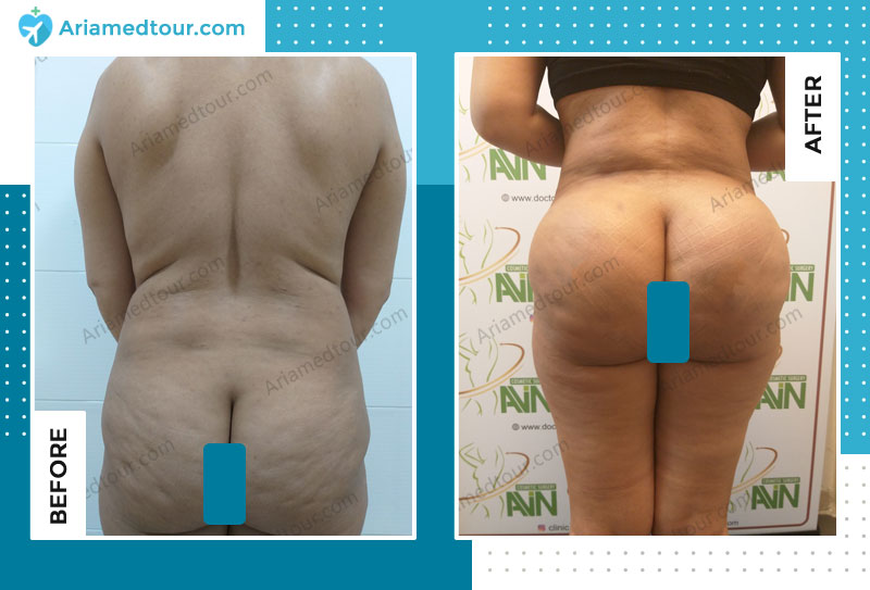 Before and after liposuction in Iran with Dr. Azizi
