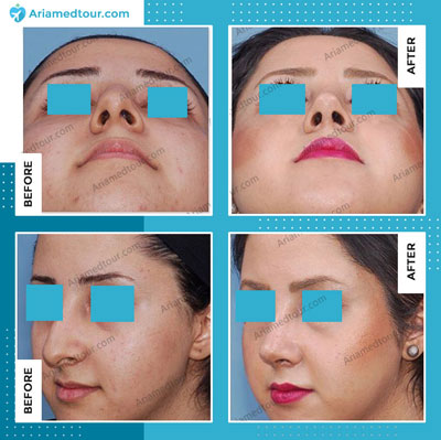 rhinoplasty nose job before after photo in iran