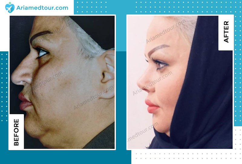 Before and after rhinoplasty in Iran with Dr. Azizi
