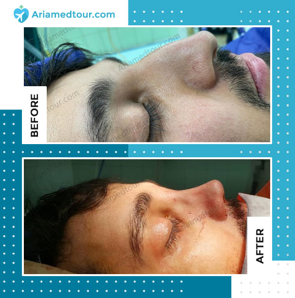 Before and after rhinoplasty in Iran for men with Dr. Azizi