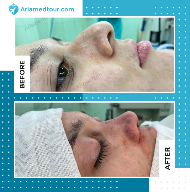 Before and after rhinoplasty for crocked nose in Iran with Dr. Azizi