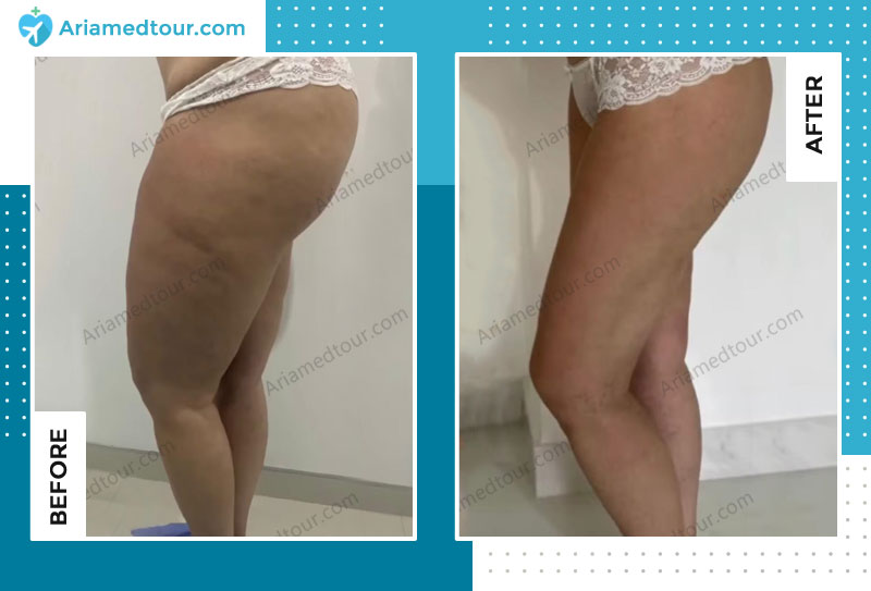 Before and after thigh lift in Iran with Dr. Shapour Azizi