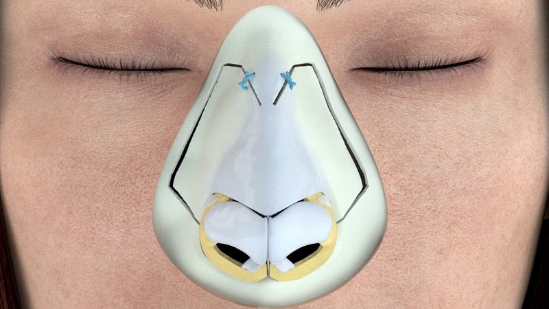 ultrasonic rhinoplasty nose job with ultrasounds
