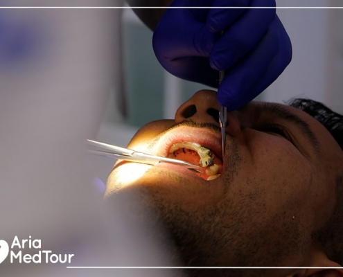 experience of dental implants in Iran with AriaMedTour