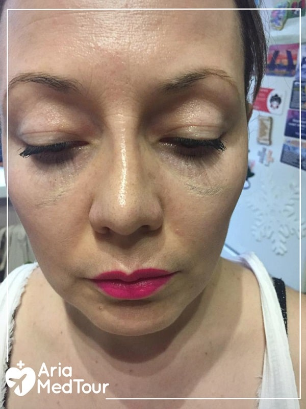 nose swelling after nose job surgery, as one of the rhinoplasty risks and complications