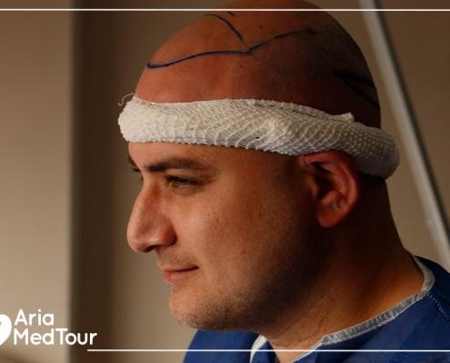 Just after hair transplant procedure