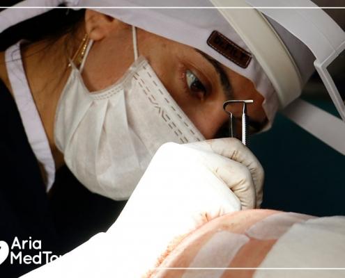 hair transplant procedure in Iran
