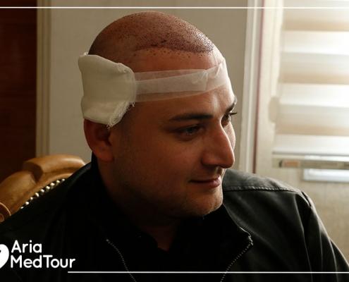 Azerbaijani patient after having hair transplant in Iran
