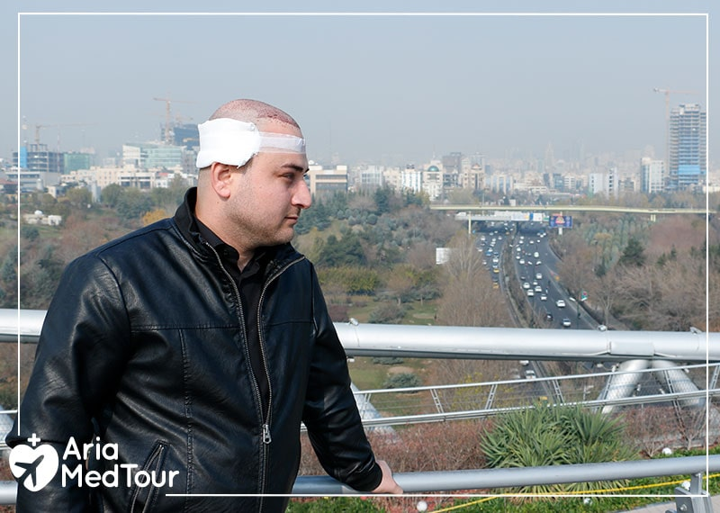 having hair transplant along with tourism in Iran